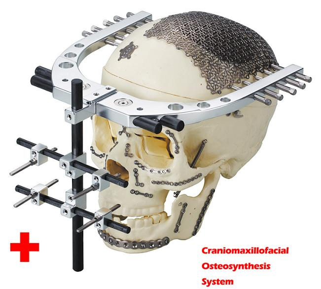 osteosynthesis procedure Hip fractures hip long nail r15 and r20  recommended procedures for using stryker osteosynthesis devices and instruments it offers guidance that you should.
