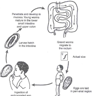 Pinworm Infection Causes Symptoms Treatment Pinworm